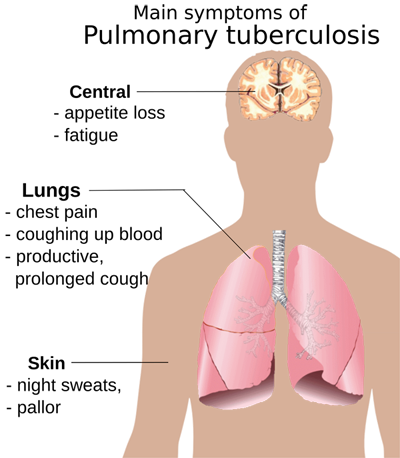 CCMikaelHaeggstroem2009Pulmonary tuberculosis symptoms